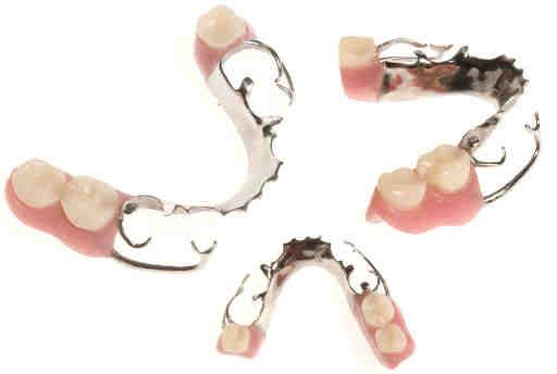 Mosty protetyczne toruń - stomatologia estetyczna implanty
